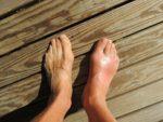 gout, sleep, snoring, gout support, gout help, gout information